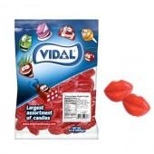 Gummi Lips 2.2lb. Bag